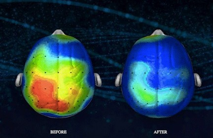 music impacts  your brain